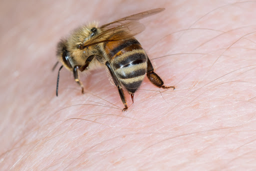 BEE-ware: Allergy to Bee Stings